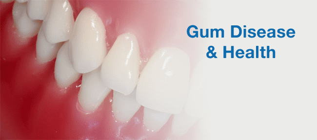 Gum Disease & Health